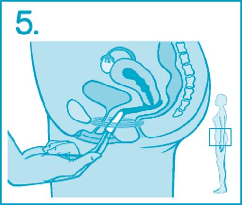 Как ввести тампон – шаг 5