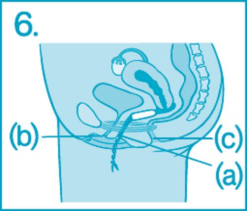 Как ввести тампон – шаг 6